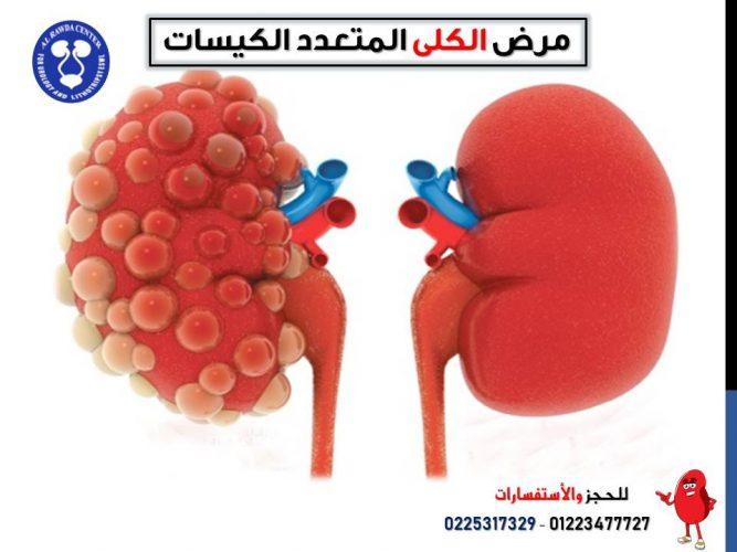 مرض الكلي المتعدد الكيسات