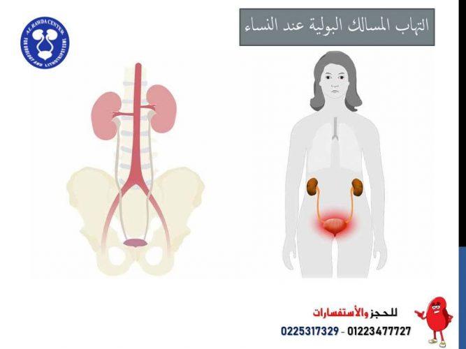 التهاب المسالك البوليه عند النساء